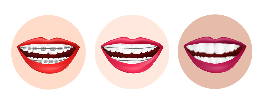 the 3 types of braces